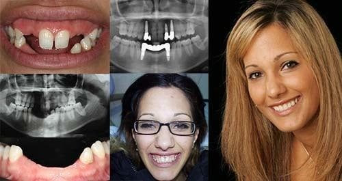 The Most Helpful Cosmetic Dentistry Procedures You Must Know