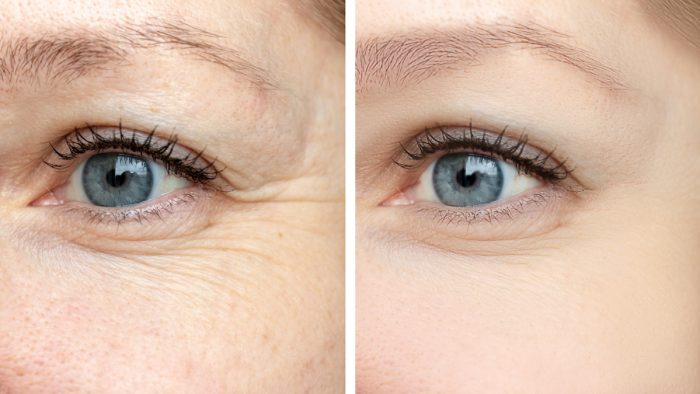 Best Botox Under Eyes Grieshaber Service : Things to Note
